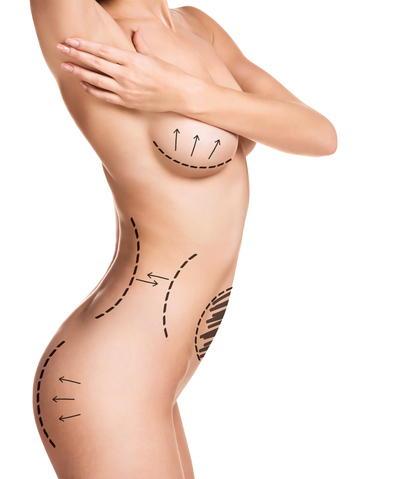remodelacion corporal post parto ecografia 4d
